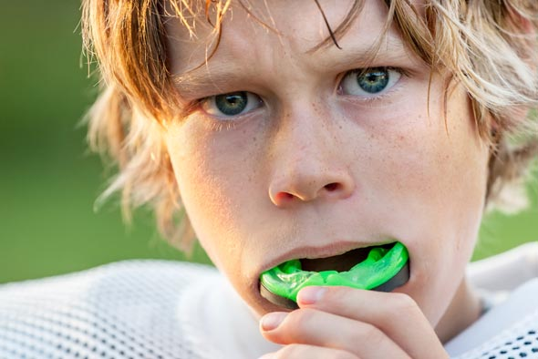 7 Facts about Your Sports Mouth Guard Grand Rapids, MI